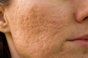 Acne Scarring 1