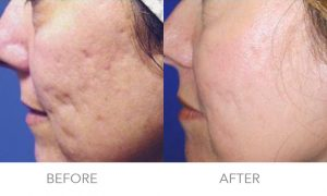 Acne-Scarring 2